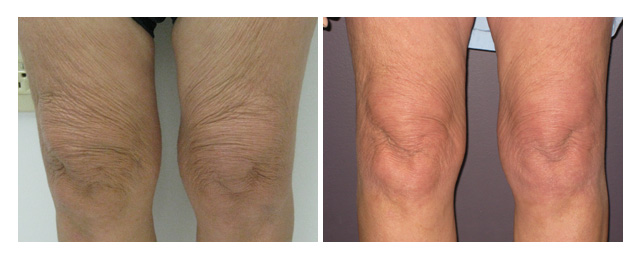 Boca Med Spa Laser Rejuvenation Before And After Photos